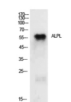 Fig.1. Western Blot analysis of MCF7 cells using TNAP Polyclonal Antibody. Secondary antibody (catalog#: A21020) was diluted at 1:20000.
