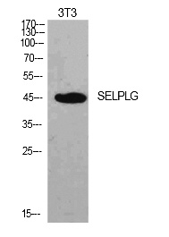 Fig.1. Western Blot analysis of NIH-3T3 cells using PSGL-1 Polyclonal Antibody. Secondary antibody (catalog#: A21020) was diluted at 1:20000.