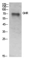 Fig. Western Blot analysis of SKOV3 cells using GHR Polyclonal Antibody. Secondary antibody (catalog#: A21020) was diluted at 1:20000.