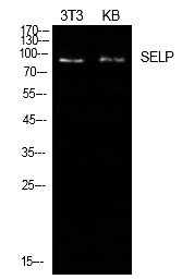 Fig.1. Western Blot analysis of NIH-3T3, KB cells using P-Selectin Polyclonal Antibody. Secondary antibody (catalog#: A21020) was diluted at 1:20000.