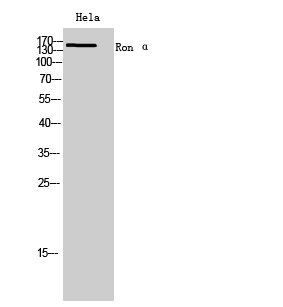Fig. Western Blot analysis of hela cells using Ron α Polyclonal Antibody. Secondary antibody (catalog#: A21020) was diluted at 1:20000.