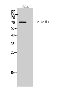 Fig. Western Blot analysis of hela cells using IL-12Rβ1 Polyclonal Antibody. Secondary antibody (catalog#: A21020) was diluted at 1:20000.