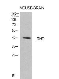 Fig.1. Western Blot analysis of Mouse brain cells using CD240d Polyclonal Antibody. Antibody was diluted at 1:1000. Secondary antibody (catalog#: A21020) was diluted at 1:20000.