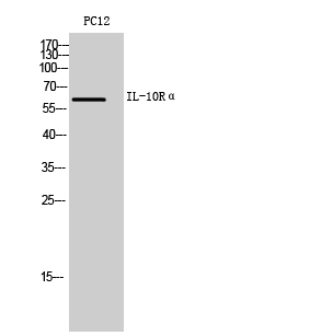 Fig. Western Blot analysis of PC12 cells using IL-10Rα Polyclonal Antibody. Secondary antibody (catalog#: A21020) was diluted at 1:20000.