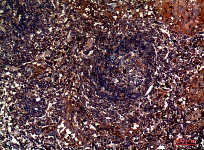 Fig.2. Immunohistochemical analysis of paraffin-embedded human-lymph, antibody was diluted at 1:100.