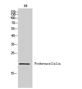 Fig.2. Western Blot analysis of KB cells using Probetacellulin Polyclonal Antibody. Secondary antibody (catalog#: A21020) was diluted at 1:20000.