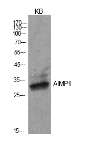 Fig.1. Western Blot analysis of KB cells using EMAP II Polyclonal Antibody. Secondary antibody (catalog#: A21020) was diluted at 1:20000.