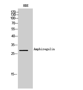 Fig. Western Blot analysis of HBE cells using Amphiregulin Polyclonal Antibody. Secondary antibody (catalog#: A21020) was diluted at 1:20000.
