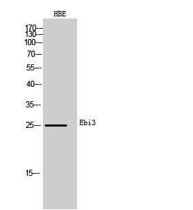 Fig. Western Blot analysis of HBE cells using Ebi3 Polyclonal Antibody. Secondary antibody (catalog#: A21020) was diluted at 1:20000.