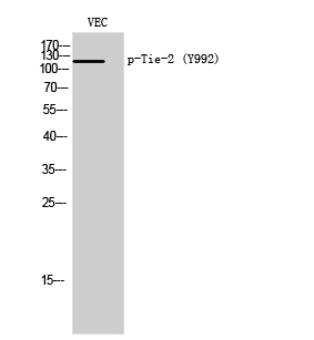 Fig. Western Blot analysis of VEC cells using Phospho-Tie-2 (Y992) Polyclonal Antibody.