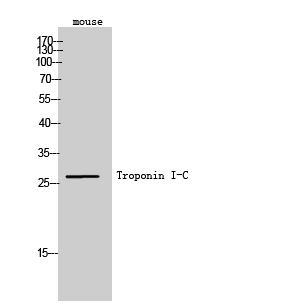Fig. Western Blot analysis of Mouse cells using Troponin I-C Polyclonal Antibody. Secondary antibody (catalog#: A21020) was diluted at 1:20000.