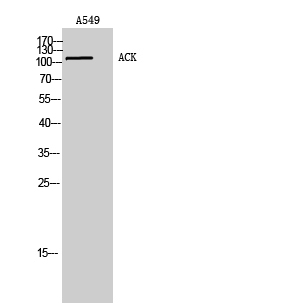Fig. Western Blot analysis of A549 cells using ACK Polyclonal Antibody. Secondary antibody (catalog#: A21020) was diluted at 1:20000.