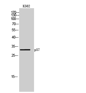 Fig.1. Western Blot analysis of K562 cells using p57 Polyclonal Antibody diluted at 1:1000.