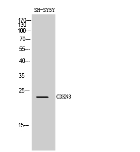 Fig. Western Blot analysis of SH-SY5Y cells using CDKN3 Polyclonal Antibody diluted at 1:1000.