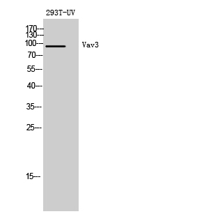 Fig. Western Blot analysis of 293T-UV cells using Vav3 Polyclonal Antibody diluted at 1:500. Secondary antibody (catalog#: A21020) was diluted at 1:20000.
