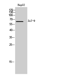 Fig. Western Blot analysis of HepG2 cells using ZnT-9 Polyclonal Antibody. Secondary antibody (catalog#: A21020) was diluted at 1:20000.