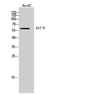 Fig. Western Blot analysis of HuvEC cells using ZnT-9 Polyclonal Antibody. Secondary antibody (catalog#: A21020) was diluted at 1:20000.