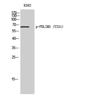 Fig. Western Blot analysis of K562 cells using Phospho-PDLIM5 (Y251) Polyclonal Antibody.