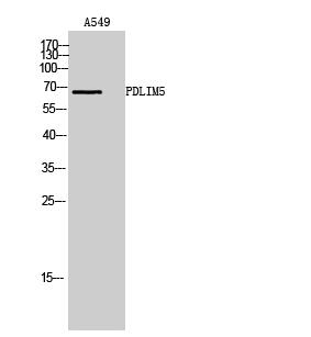 Fig. Western Blot analysis of A549 cells using PDLIM5 Polyclonal Antibody.
