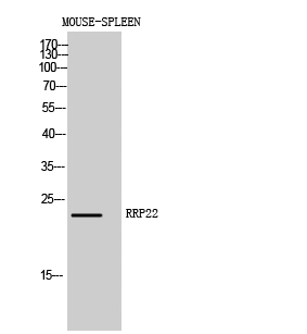Fig. Western Blot analysis of Mouse-SPLEEN cells using RRP22 Polyclonal Antibody diluted at 1:1000.