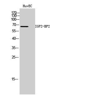 Fig. Western Blot analysis of HuvEC cells using IGF2-BP2 Polyclonal Antibody.