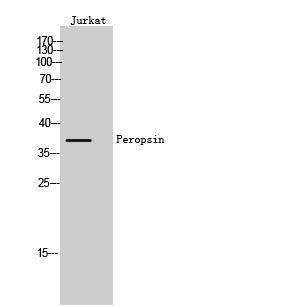 Fig. Western Blot analysis of Jurkat cells using Peropsin Polyclonal Antibody.