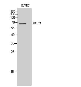 Fig. Western Blot analysis of HUVEC cells using MALT1 Polyclonal Antibody.
