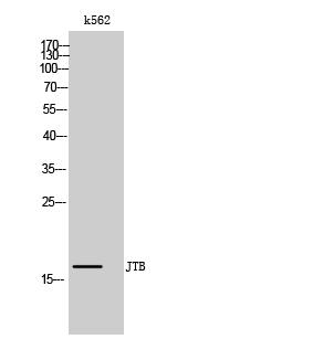 Fig. Western Blot analysis of k562 cells using JTB Polyclonal Antibody.
