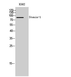 Fig. Western Blot analysis of K562 cells using Stonin-1 Polyclonal Antibody.