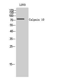 Fig. Western Blot analysis of LOVO cells using Calpain 10 Polyclonal Antibody.