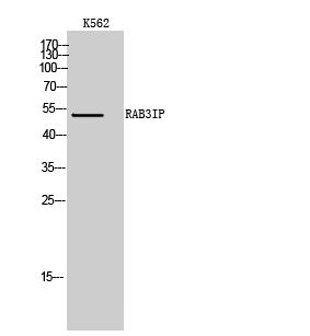 Fig. Western Blot analysis of K562 cells using RAB3IP Polyclonal Antibody.
