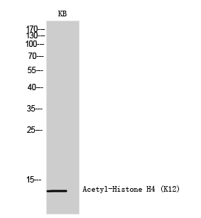 Fig.1. Western Blot analysis of KB cells using Acetyl-Histone H4 (K12) Polyclonal Antibody diluted at 1:500. Secondary antibody (catalog#: A21020) was diluted at 1:20000.
