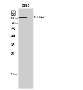 Fig. Western Blot analysis of K562 cells using COL6A2 Polyclonal Antibody.