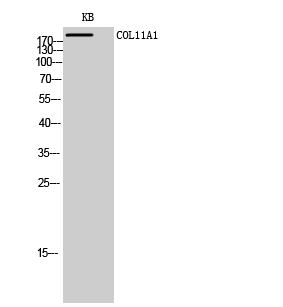 Fig. Western Blot analysis of KB cells using COL11A1 Polyclonal Antibody diluted at 1:1000.