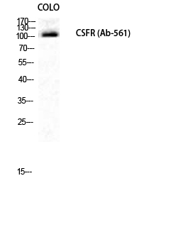 Fig.1. Western Blot analysis of COLO cells using c-Fms Polyclonal Antibody diluted at 1:1000.