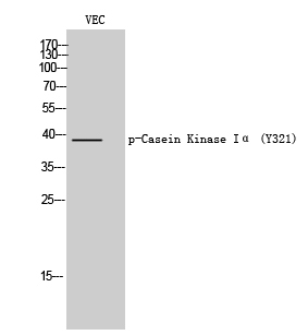 Fig. Western Blot analysis of VEC cells using Phospho-Casein Kinase Iα (Y321) Polyclonal Antibody.