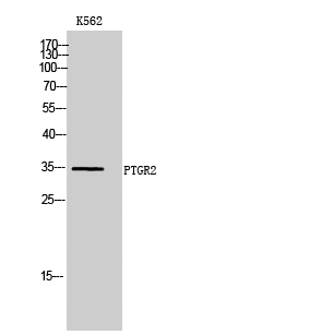 Fig. Western Blot analysis of K562 cells using PTGR2 Polyclonal Antibody.