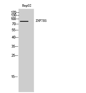 Fig. Western Blot analysis of HepG2 cells using ZNF785 Polyclonal Antibody. Secondary antibody (catalog#: A21020) was diluted at 1:20000.