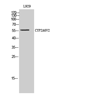 Fig. Western Blot analysis of L929 cells using CYP2A6V2 Polyclonal Antibody diluted at 1:2000.