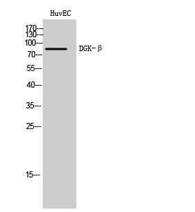 Fig. Western Blot analysis of HuvEC cells using DGK-β Polyclonal Antibody.