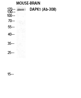 Fig. Western Blot analysis of Mouse-BRAIN cells using DAPK1 Polyclonal Antibody diluted at 1:1000.