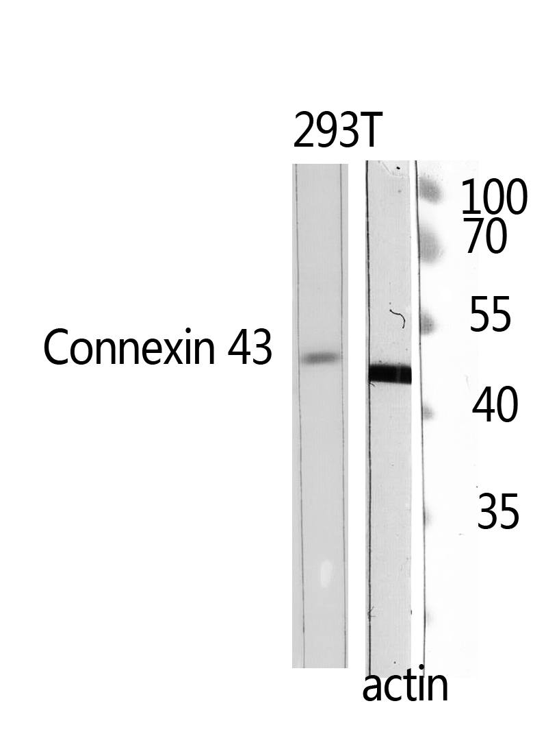 Fig.2. Western Blot analysis of 293T using Doublecortin Polyclonal Antibody. Antibody was diluted at 1:500.