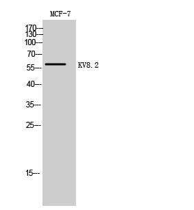 Fig. Western Blot analysis of MCF-7 cells using KV8.2 Polyclonal Antibody.