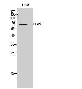 Fig. Western Blot analysis of LOVO cells using PWWP2B Polyclonal Antibody.