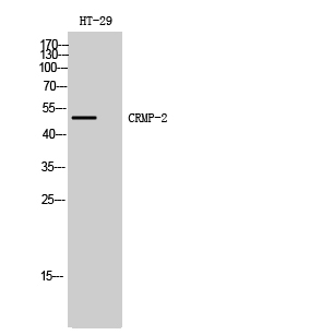 Fig. Western Blot analysis of HT-29 cells using CRMP-2 Polyclonal Antibody diluted at 1:2000.