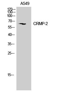 Fig. Western Blot analysis of Mouse brain cells using CRMP-2 Polyclonal Antibody.