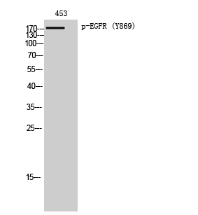 Fig. Western Blot analysis of 453 cells using Phospho-EGFR (Y869) Polyclonal Antibody diluted at 1:1000.