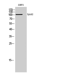 Fig. Western Blot analysis of 22RV1 cells using EphA2 Polyclonal Antibody diluted at 1:1000.