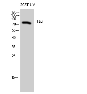 Fig. Western Blot analysis of 293T-UV cells using Tau Polyclonal Antibody diluted at 1:1000.