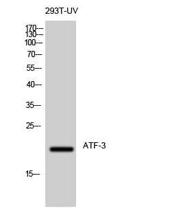 Fig. Western Blot analysis of 293T-UV cells using ATF-3 Polyclonal Antibody diluted at 1:500.